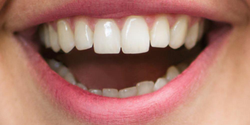 bilde av smile tannlegevakt årskontroll